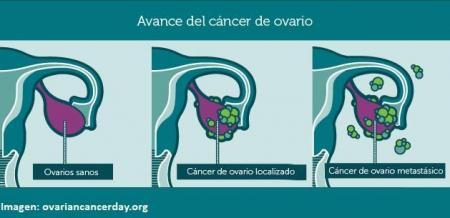 cáncer-de-ovario