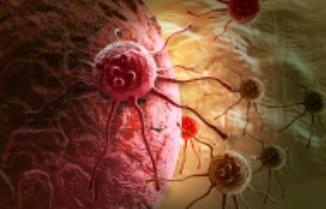 síntomas-del-cáncer