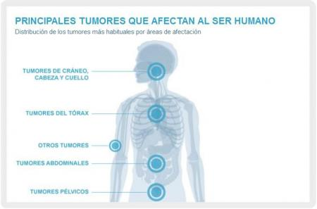 tumores-frecuentes