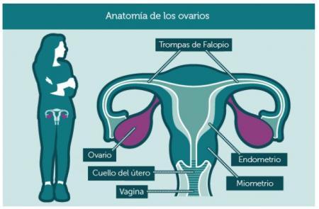 cáncer-de-ovarios