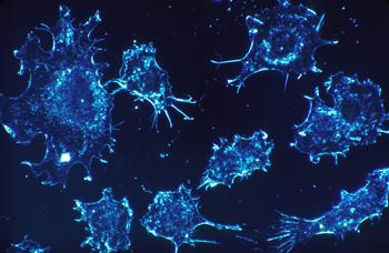 células-cancerosas
