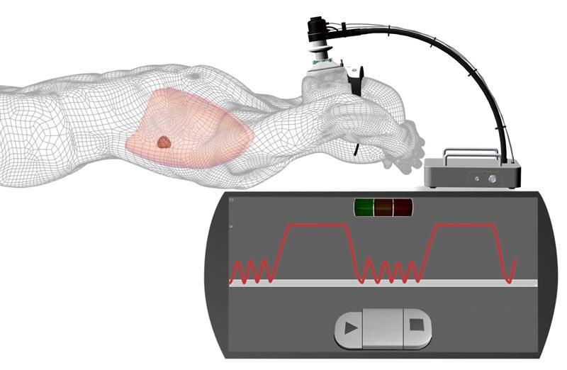 20190715-sistema-SDX-de-control-espirométrico