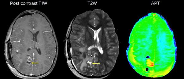 20190926-diagnóstico-de-los-tumores-cerebrales-2