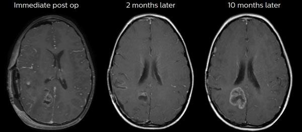 20190926-diagnóstico-de-los-tumores-cerebrales-3