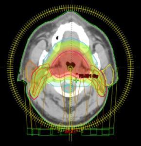 Arcoterapia volumétrica en cáncer de orofaringe